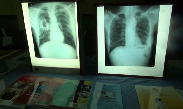 Health Ministry focuses funds on tuberculosis treatment