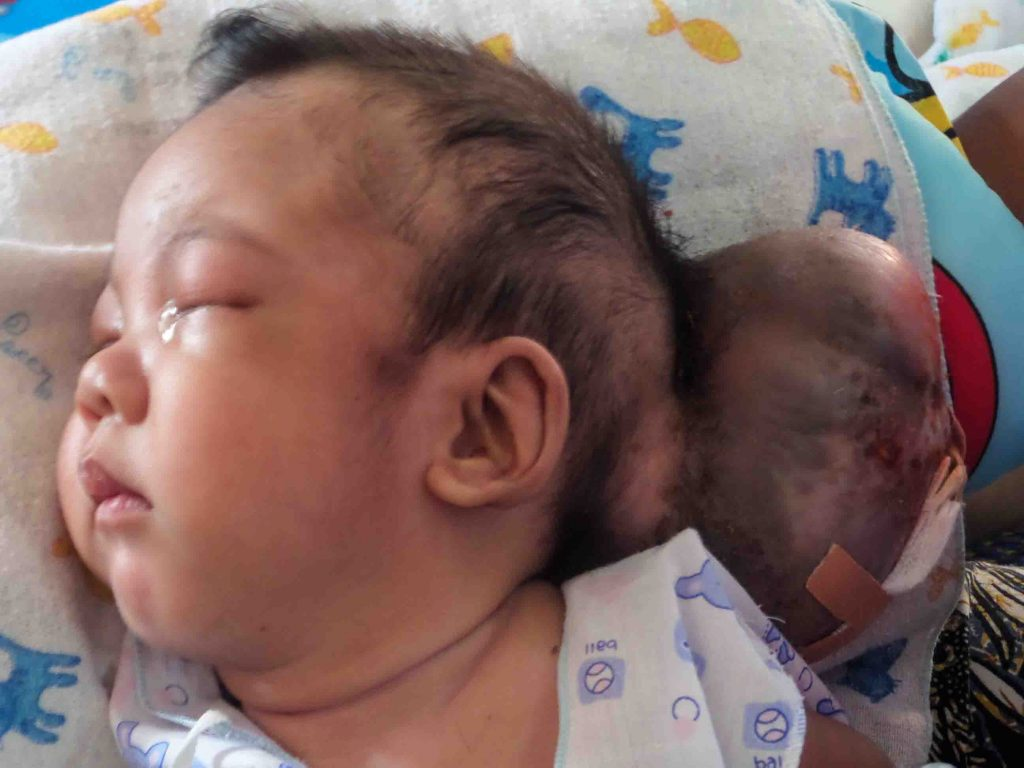 Mon's growth before his operation. (Photo: Burma Children Medical Fund)