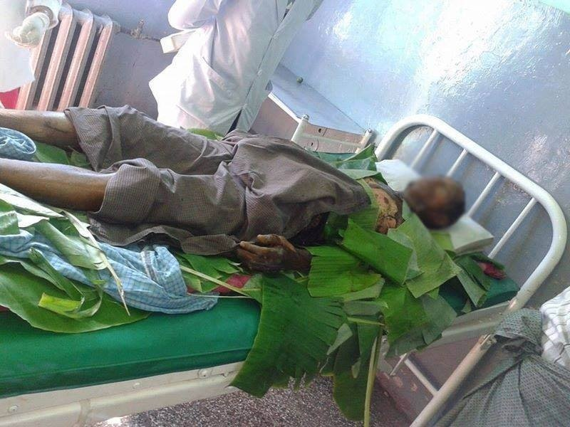 Myint Aung, aged 63, suffered extensive burns after setting himself alight (Photo: DVB)
