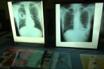 X-rays from tuberculosis patients in Burma. (PHOTO: DVB).
