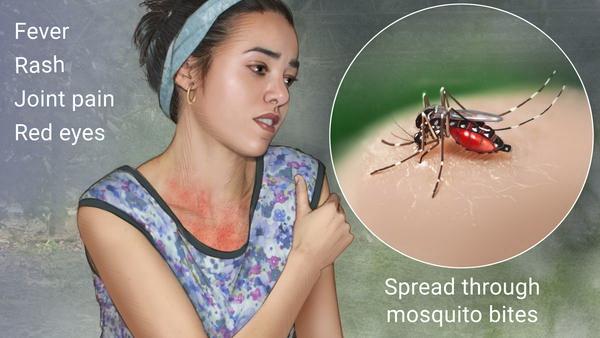 Burmese consulate issues Zika warning in Chiang Mai