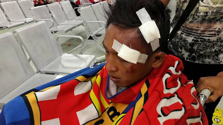 Burmese football fans attacked after match in Malaysia